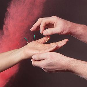 Stop met roken door acupunctuur